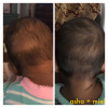 Pure Coconut Cradle Cap Oil Before and After comparison photos of baby hair breakage spot