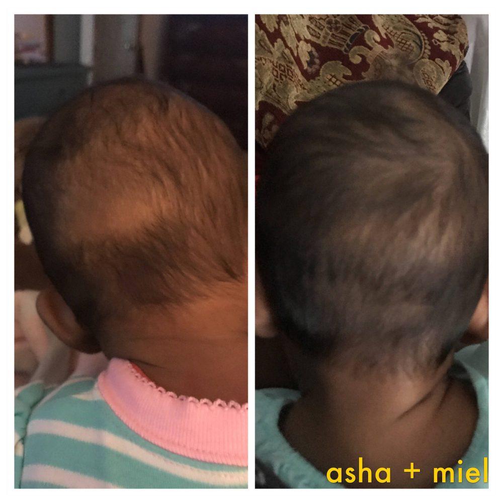 Pure Coconut Cradle Cap Oil, Gentle Herbal Baby Hair Balm, Cradle Cap, Dry Scalp